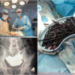 Около килограмма шурупов извлекли врачи из желудка заключенного в Кокшетау