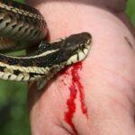 Можно ли высосать яд из укуса змеи